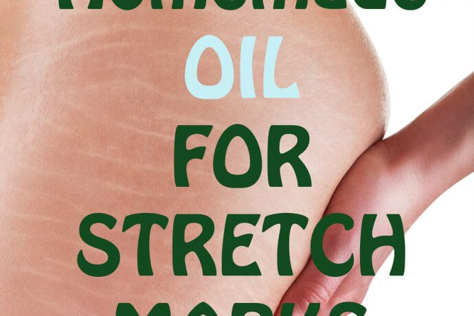 homemade oil for stretch marks
