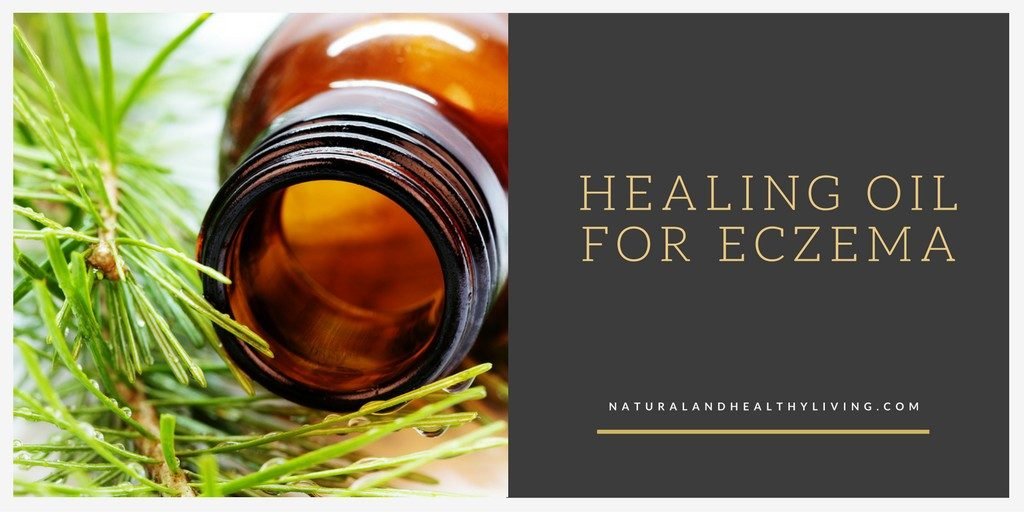 DIY Healing Oil for eczema - the best treatment for eczema