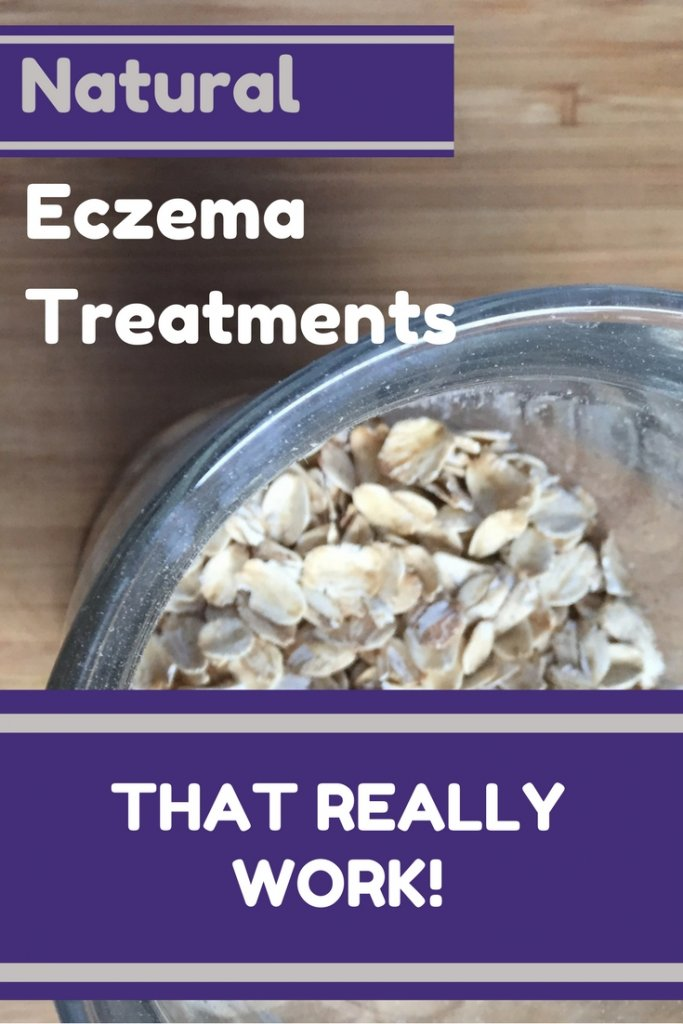 Natural Eczema treatment